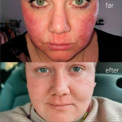 før og efter brug af face cure fra Astion Pharma