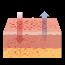 Ubeskyttet hud med eksem
